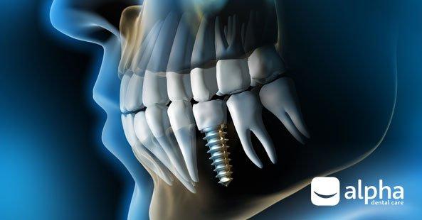 How do dental implants work - Alpha Dental, Chester-le-Street
