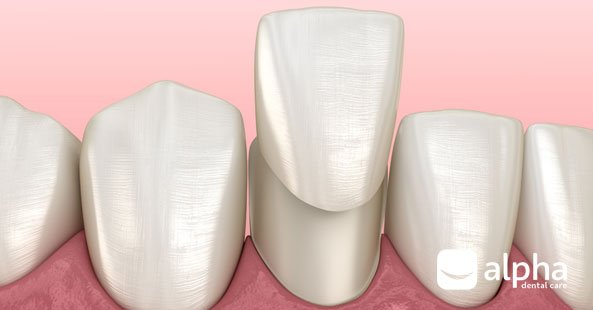 Illustration of how dental veneers work at our dental surgery in Chester-le-Street