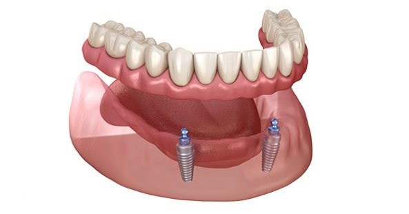 Dental implants in Chester-le-Street