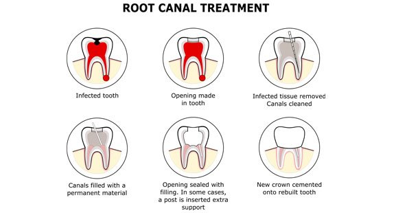 Root Canal Treatment dentist in Chester-le-Street