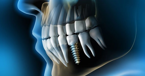 Xray image of a dental implant by Vitality Dental Care, a local Dentist in Northallerton, North Yorkshire