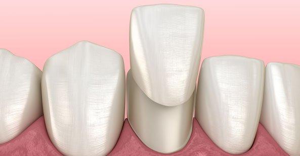 Image of dental vaneers by Vitality Dentist in Northallerton, North Yorkshire