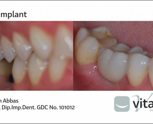 Dental Implants from Vitality Dentist in Northallerton, North Yorkshire