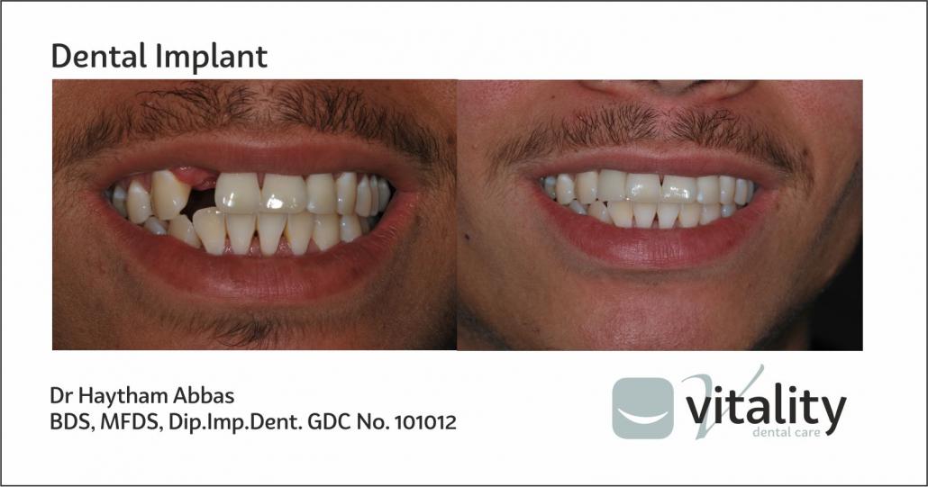 Dental Implant from Vitality Dentist in Northallerton, North Yorkshire