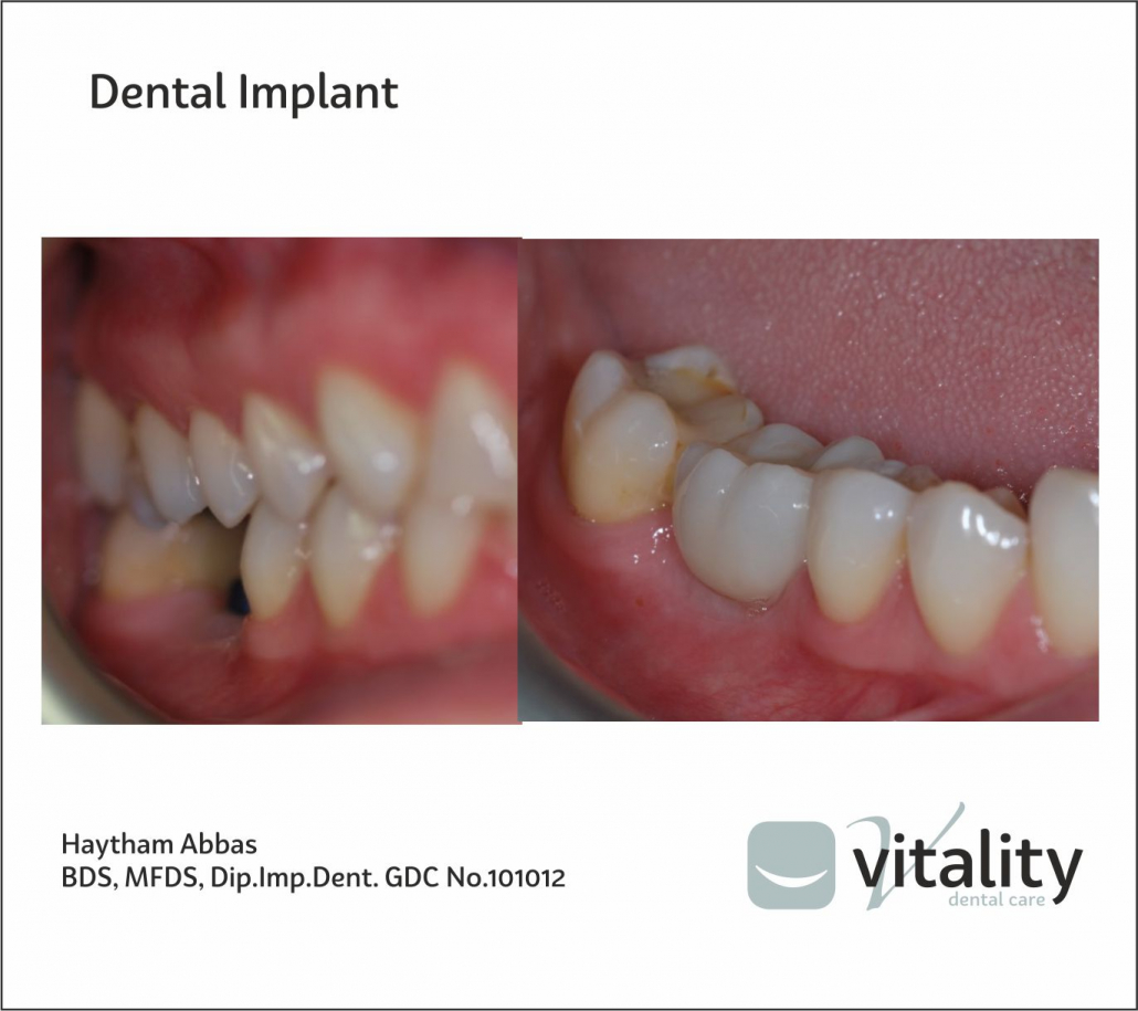 Image of dental implant by Vitality Dentist in Northallerton, North Yorkshire