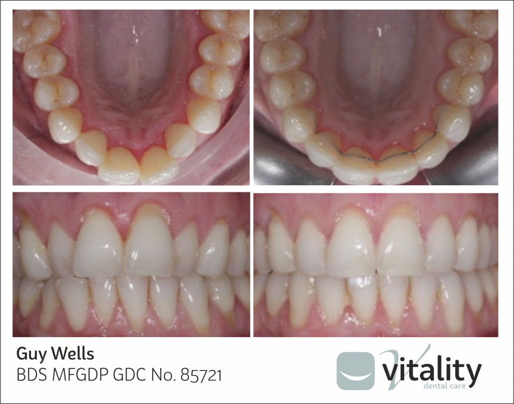Orthodontic smile