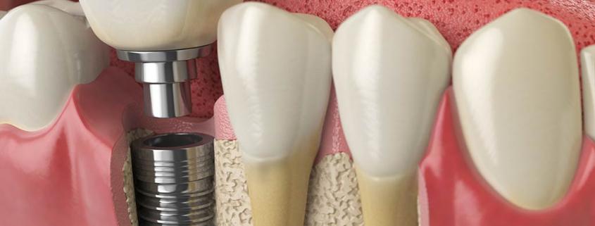 Dental Implants at Vitality Dental in Northallerton, Yorkshire