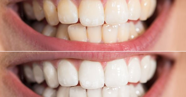 Teeth whitening at Windmill Orthodontics in York