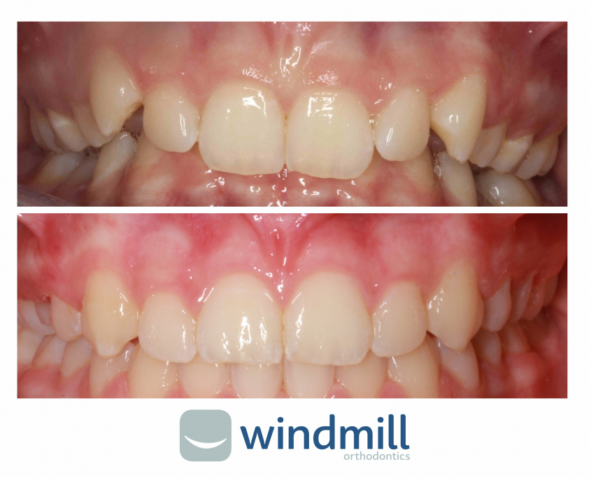 A photograph comparing smiles before and after having orthodontic braces fitted to straighten teeth in York